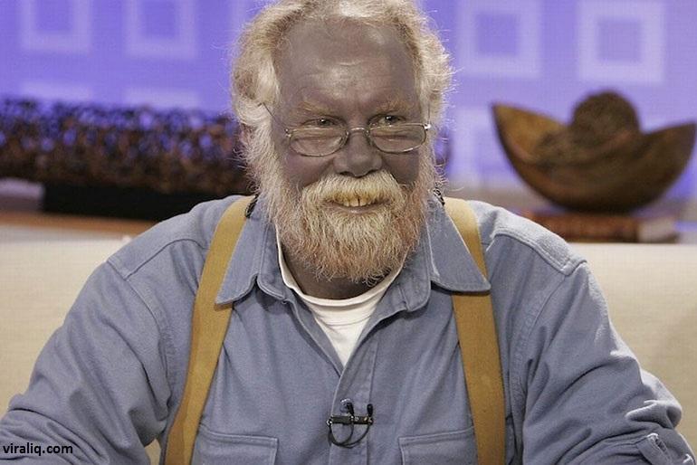 L'homme bleu, l'automédication a fait de lui une des personnes les plus rares du monde.