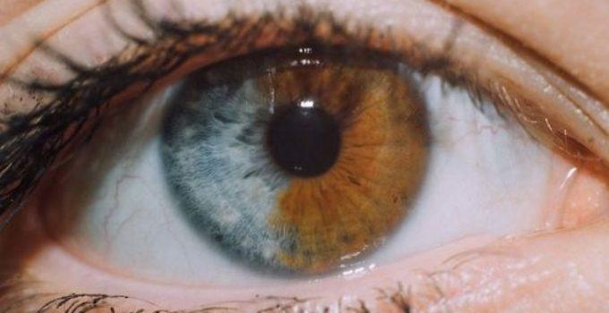 Iris est séparée en deux