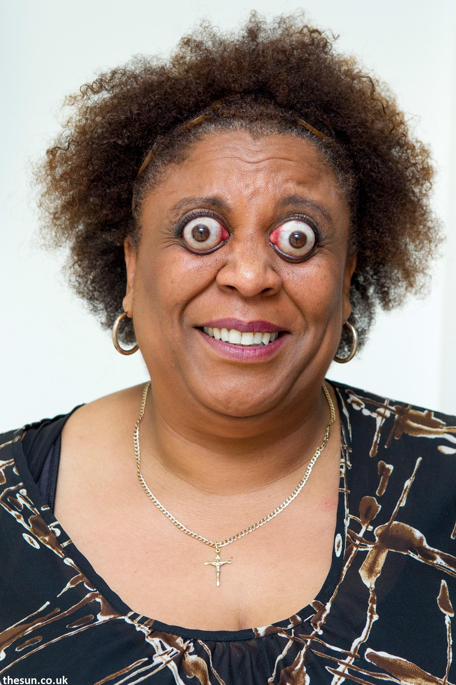 une des personnes les plus rares du monde Kim Goodman et ses yeux qui sortent de leurs orbite!